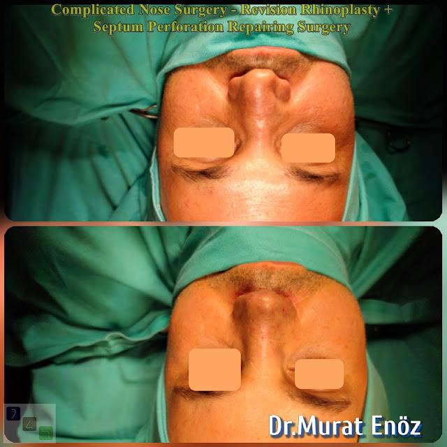 Complicated rhinoplasty, nasal septum perforation closore surgery,2nd Revision Male Rhinoplasty,Closure of nasal septum perforation with rib cartilage,