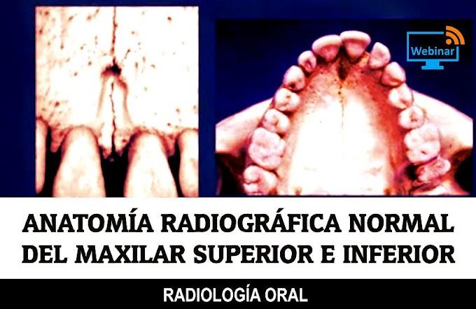 RADIOLOGÍA ORAL: Anatomía Radiográfica normal del Maxilar Superior e Inferior