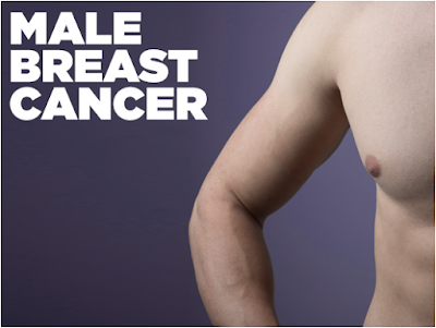 Male Breast Cancer is Real - 6 Signs Every Man Needs to Look For