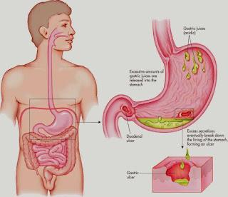 Obat Untuk perut sakit dan kembung