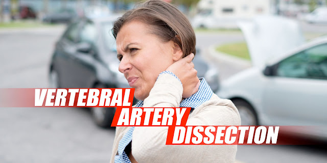 Vertebral Artery Dissection Found During Chiropractic Examination Cover Image