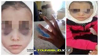معلمة تعتدي بالعنف على تلميذة الـ6 سنوات مما أدى لتورم عينيها..