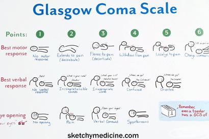 Cara Mengetahui Tingkat Kesadaran Pasien Dengan GLASGOW COMA SCALA (GCS)