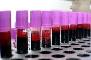 Delhi: Plasma therapy successful, plasma patient report negative corona