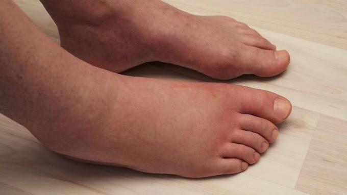 Los científicos explican 6 cosas que causan la hinchazón de las piernas (y cómo tratarlas)
