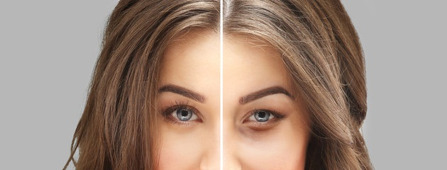 Você Sabia Que A Primeira Área Que Envelhece São As Dos Olhos?