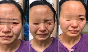Nigerian Coronavirus patient bite nurse's face in China as she tries to quarantine him - Watch video