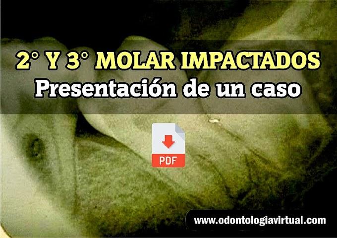 PDF: Segundo y tercer molar inferior izquierdo impactados. Presentación de un caso