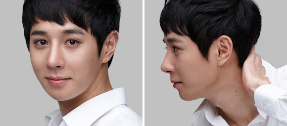 짱이뻐! - Korean Rhinoplasty Specialized Hospital, Strong and Soft at The Same Time