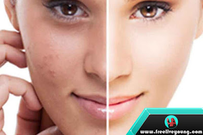 How to Eliminate Black Spots