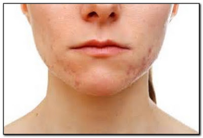 causes of severe acne