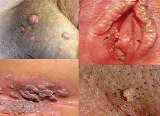 Cara Menghilangkan Kutil Pada Vagina Dengan Obat Alami Ampuh