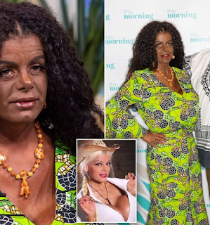 White German Model, Martina Big,Who Took Injections To Change Her Skin Supports BLM