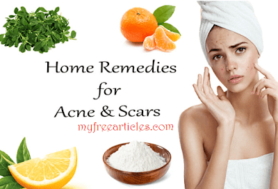 Pimples Oily Skin And Acne Treatment My Free Artilces