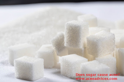 Reason to Have Better Diet: Does Sugar Cause Acne?