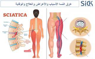 عرق النسا الأسباب والأعراض والعلاج والوقاية