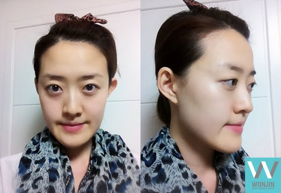 짱이뻐! - Yahoo! Fully Recovered After Plastic Surgery in South Korea!