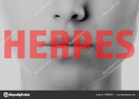 Jenis Obat Herpes Paling Manjur yang Bisa Ditemukan di Apotek