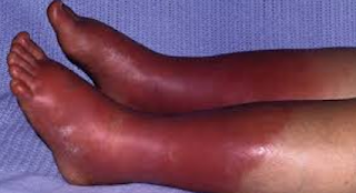 Erythromelalgia is a rare condition that causes episodes of burning pain