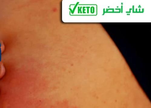 الطفح الجلدي من أشكال الكيتو راش