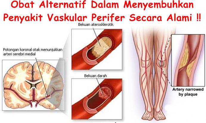 Obat Tradisional Vaskular Perifer
