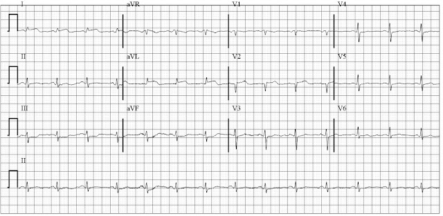 EKG of evolving ST elevation anterolateral MI (STEMI)