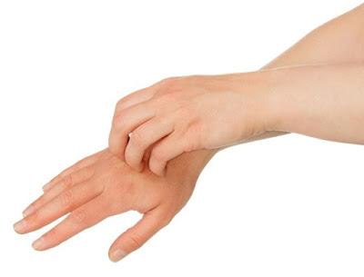 Mengenal-Alergi-Dingin-Gejala-Penyebab-dan-Cara-Mengobatinya