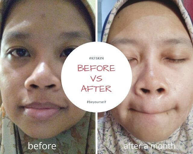 perawatan wajah memperlihatkan hasilnya