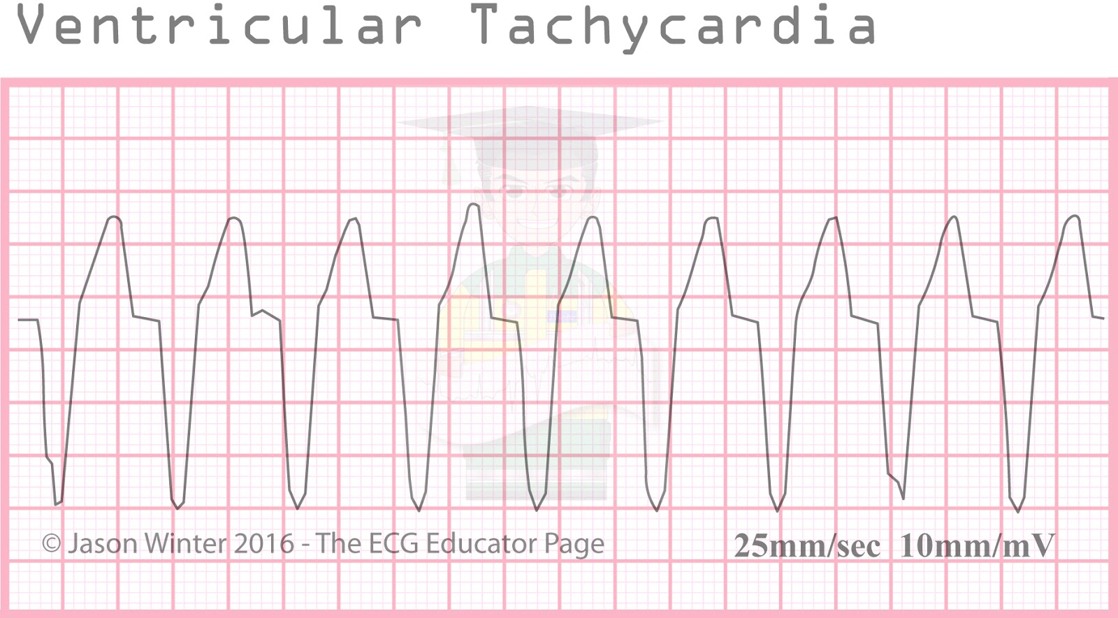 ECG Educator Blog : Ventricular Rhythms Ventricular Tachycardia Rhythm Strip