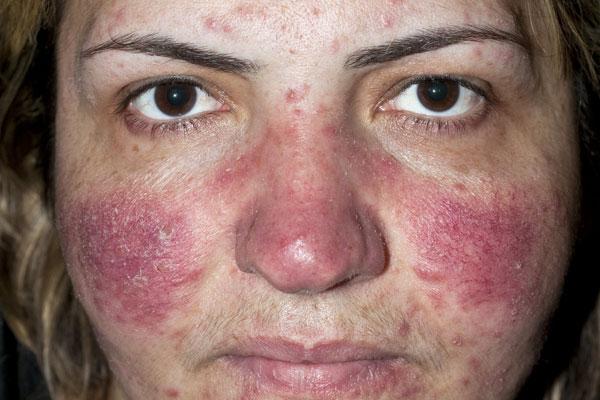 Skin And Facial Treatments: Rosacea