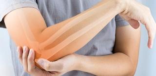 Cara Menjaga Kesehatan Sendi dan Tulang