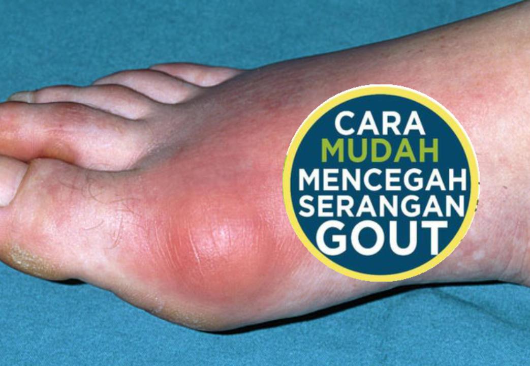 6 Cara Mudah Mencegah Serangan Gout