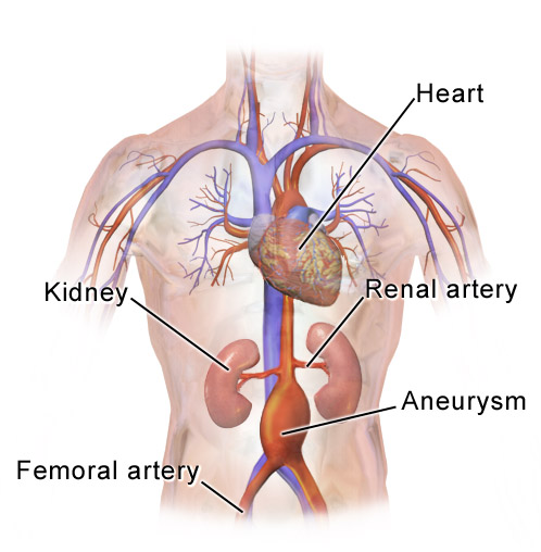 Abdominal Aortic Aneurysm: symptoms, Causes, Diagnosis, Treatment and Prevention