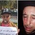 Maroc: un ex-prisonnier politique s'est cousu les yeux, les oreilles et la bouche pour  faire valoir son droit au travail