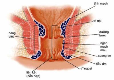 bệnh trĩ biểu hiện đi cầu ra máu