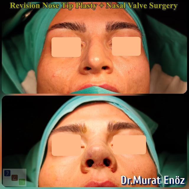 Open Technique Revision Nose Tip Plasty + Nasal Valve Surgery