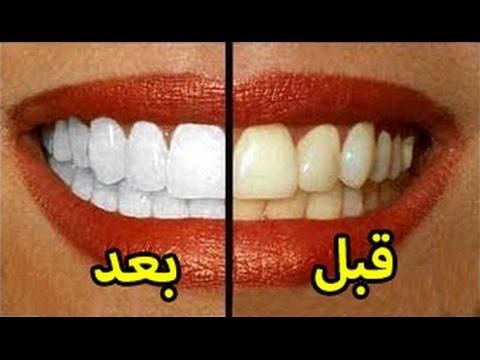 وصفات طبيعية لتبييض الأسنان بسرعة