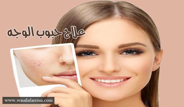 وصفات طبيعية لعلاج حبوب الوجه