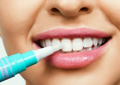 Teeth Whitening: What to eat after teeth whitening