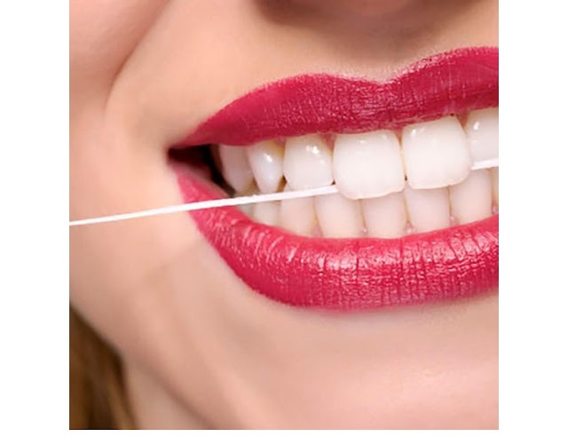 Cómo blanquear los dientes: GUÍA COMPLETA
