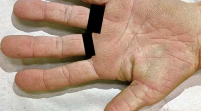Hands Can Predict If You're Going To Get Cancer
