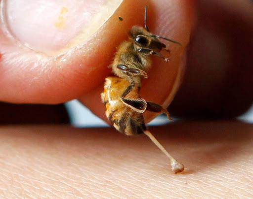 Πως να αποφύγουμε αποτελεσματικά τα τσιμπήματα των μελισσών
