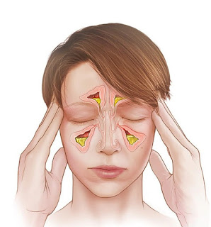 Physiotherapy In Sinusitis  Treatment