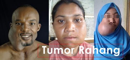 Cara Menyembuhkan Tumor Rahang Tanpa Operasi