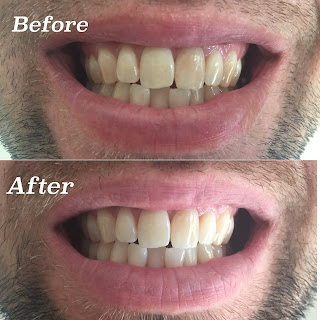 Smile Brilliant Before and After Photos