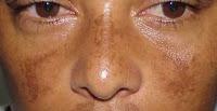 Cara Menghilangkan Melasma Pada Wajah