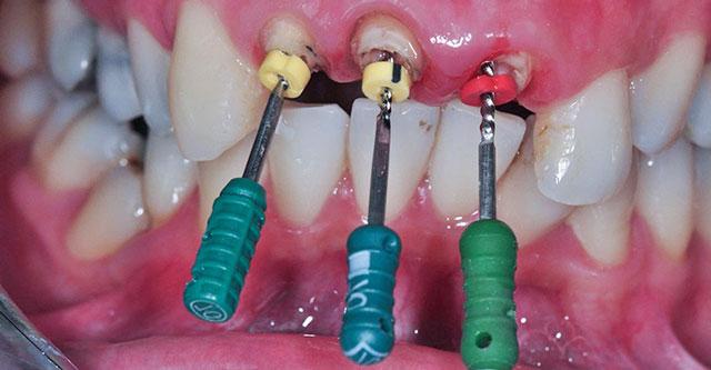 قواعد عامة في علاج عصب الاسنان
