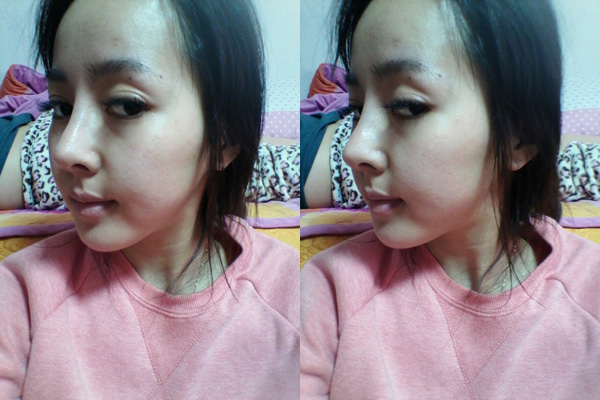 짱이뻐! - Wonjin Nose Surgery To Get Nose Like a Doll