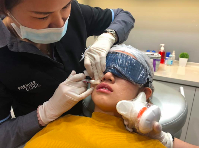 botox filler injection in Malaysia