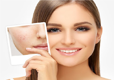 what is acne and why do you get acne scars